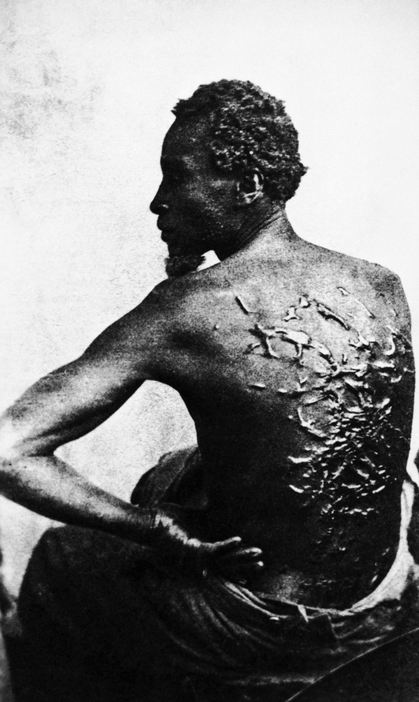 Slave with a Scarred Back
